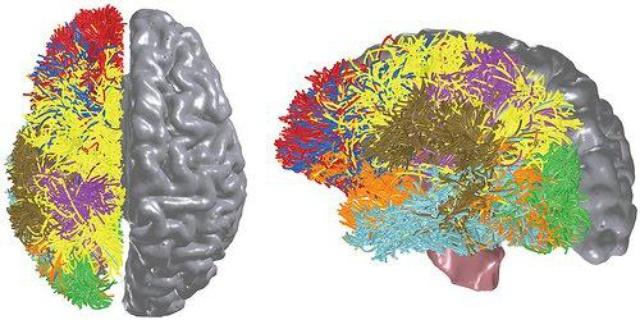IBM brain 3