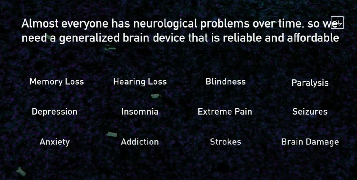 Obietnice Neuralink skupiają się na rozwiązaniu wszystkich problemów mózgu