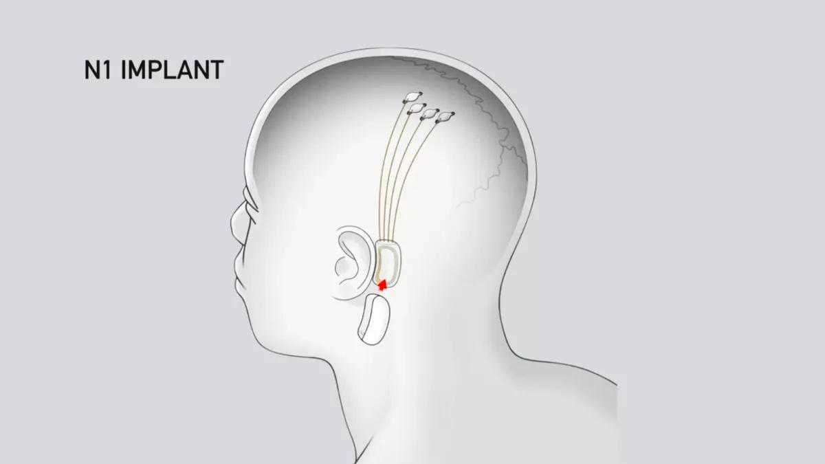 Neuralink N1 ma połączyć się z naszym mózgiem