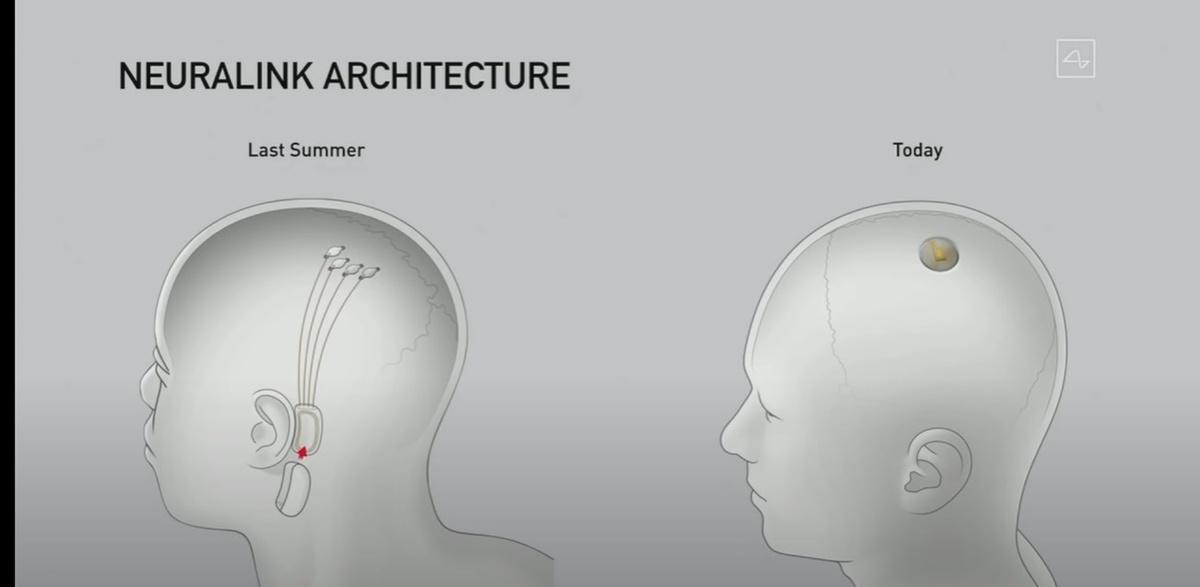 Nowy kształt Neuralink czyni urządzenie prostszym i lepiej ukrytym