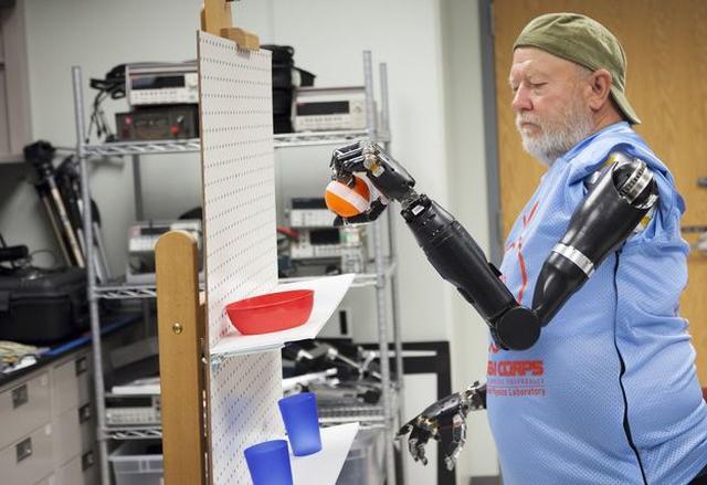 Protezy Sterowane Myślami - Pierwszy Pacjent Już Je Testuje
