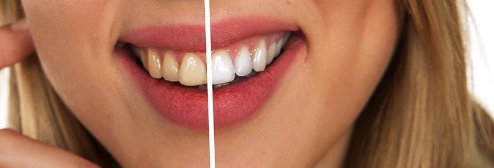 żółte i białe zęby